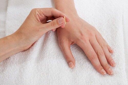 fonctionnement de l'acupuncture