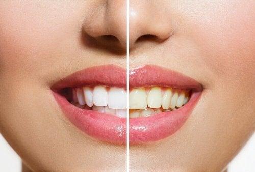 Des produits naturels qui vous aideront à blanchir vos dents
