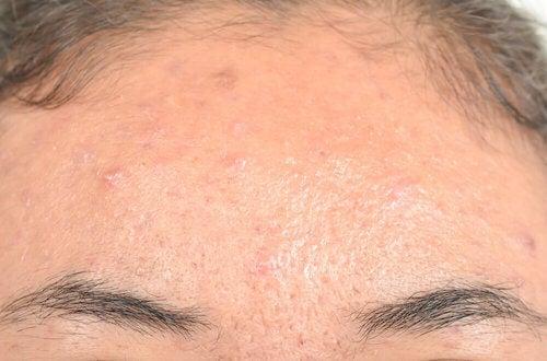Remèdes naturels efficaces contre la dermatite séborrhéique