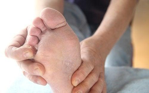 le pied d'athlète