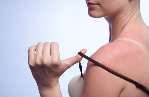 7 remèdes naturels pour soigner les coups de soleil