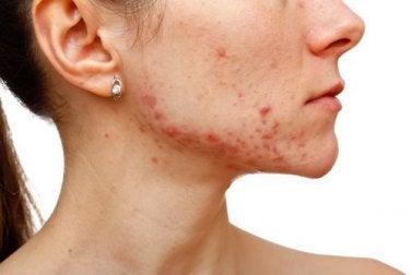 Avoir de l'acné peut indiquer des ovaires polykystiques.