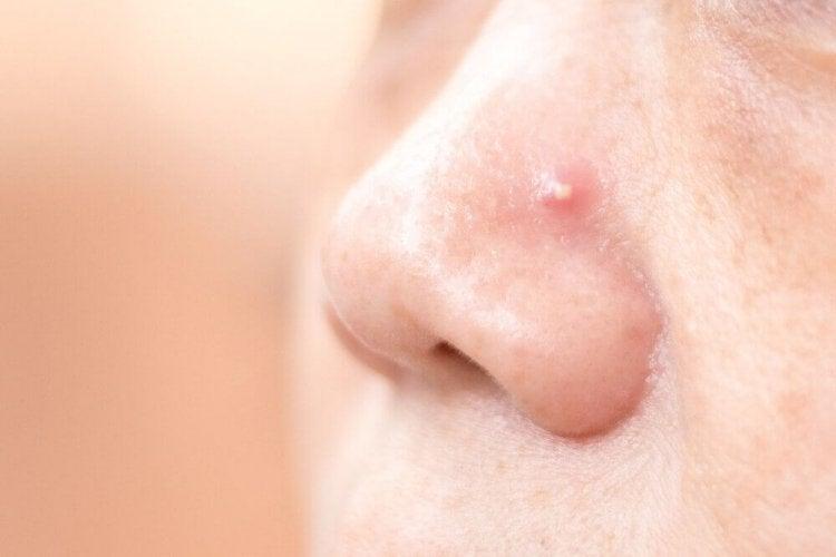 Comment traiter les boutons sur le nez avec 4 remèdes maison