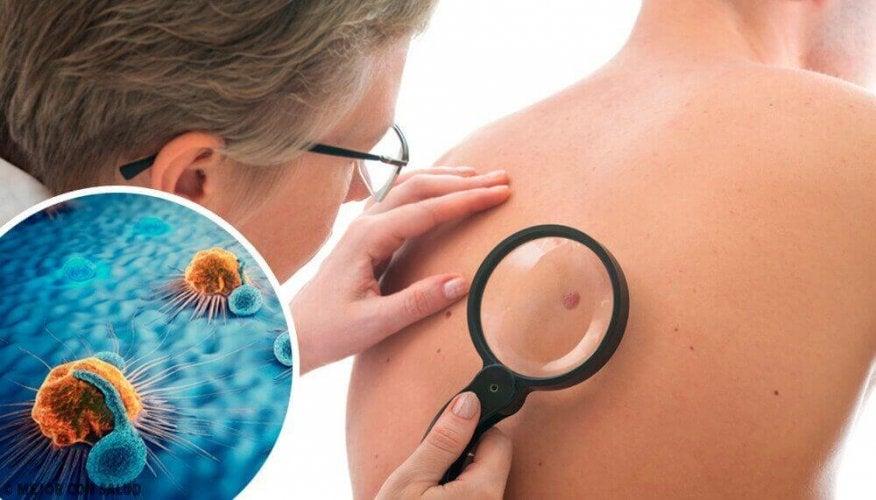 Les signaux d'alarme d'un cancer de la peau