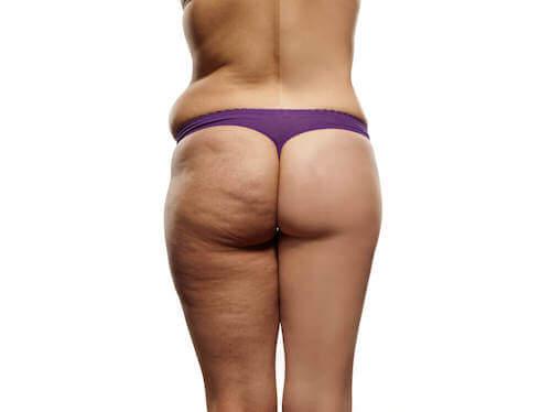 Comment faire un régime pour réduire la cellulite
