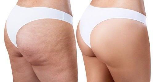 Auto-massage pour éliminer la cellulite