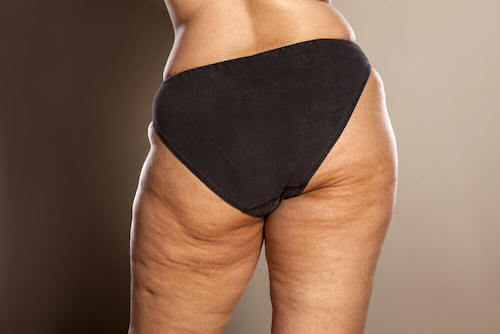 Les étapes de la formation de la cellulite