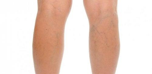 Varices au niveau des jambes