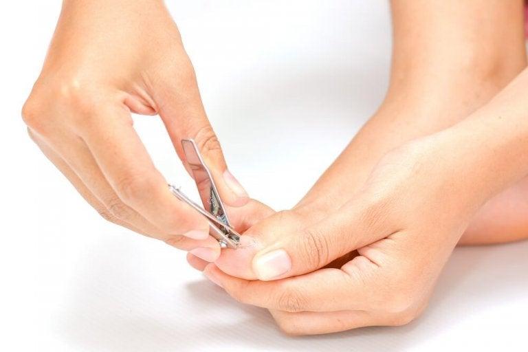 5 solutions naturelles pour soulager les ongles incarnés