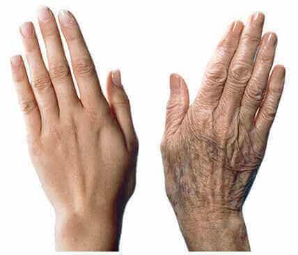 7 conseils pour prévenir le vieillissement des mains