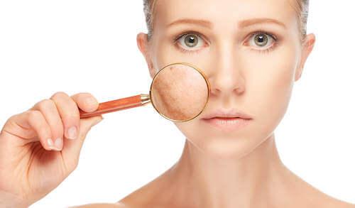 Les tâches sur le visage sont un signe des ovaires polykystiques