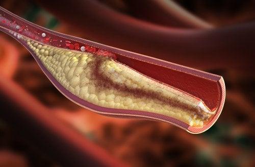 symptômes et remèdes naturels pour traiter l'artériosclérose