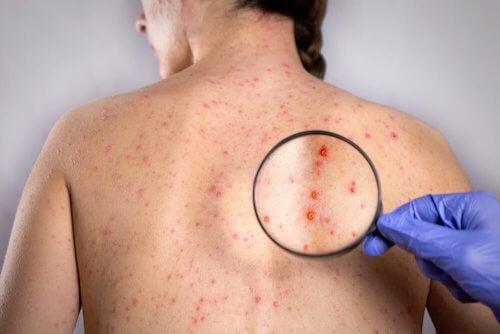 Comment soigner l'herpès du dos