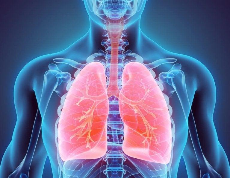 Bronchectasie : traitements naturels pour la combattre