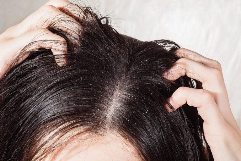 Les 6 meilleurs remèdes pour combattre les champignons sur le cuir chevelu