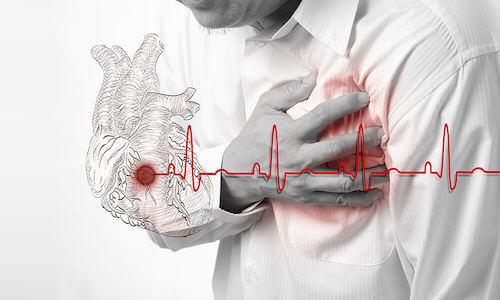 Faire trop d'exercice physique peut affaiblir le coeur