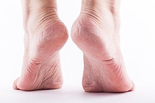 les callosités des pieds