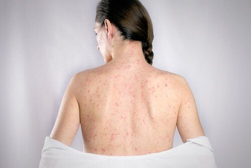 Les 5 meilleurs remèdes pour soigner l'herpès du dos