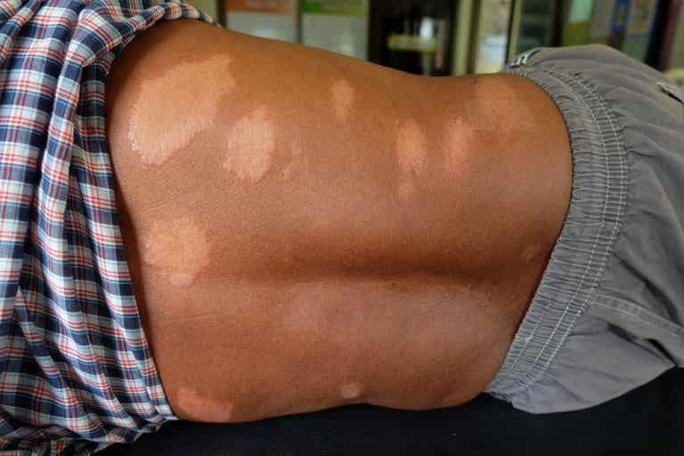 Maladie de Hansen : comment soulager naturellement les symptômes ?