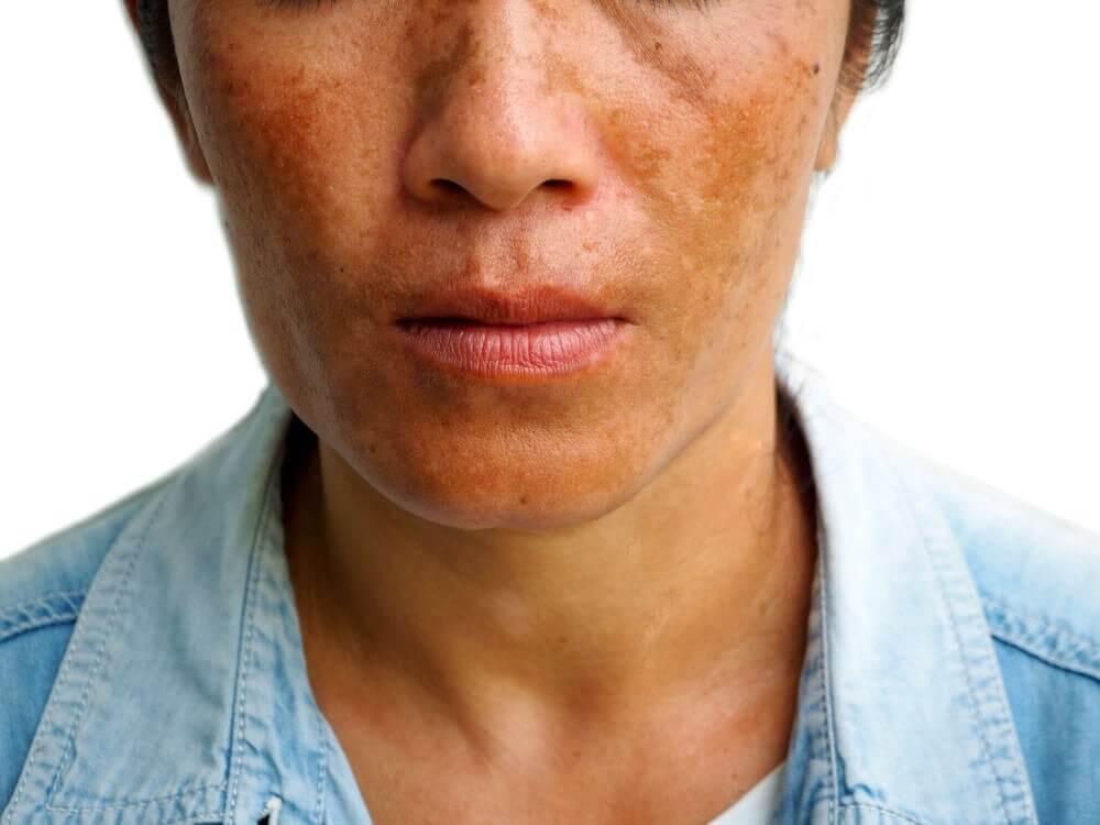 Découvrez 3 traitements pour réduire les taches de mélasma