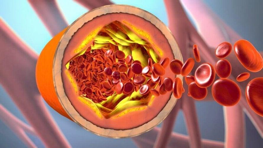 Comment éviter l'obstruction des artères