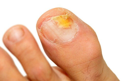 Les causes des mycoses des ongles.