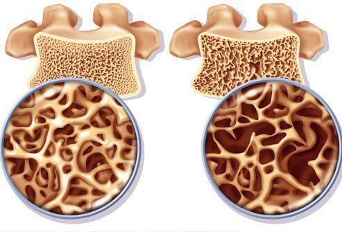 Comment préparer un remède riche en calcium contre l'ostéoporose