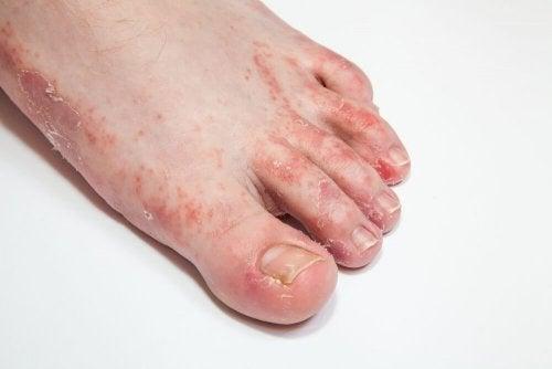 cloque pied mycose