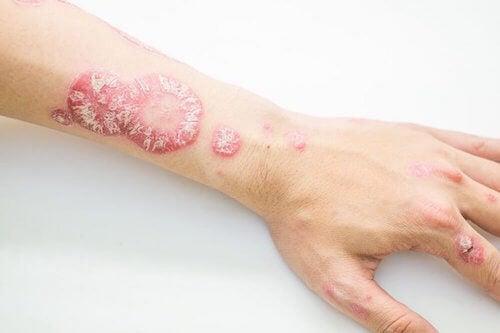 Combattre le psoriasis avec ces remèdes d'origine naturelle