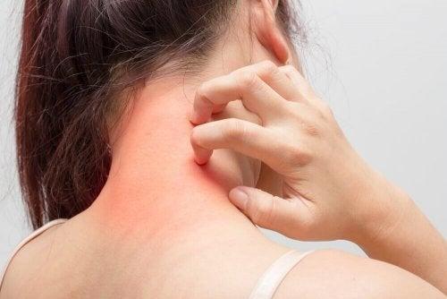 3 remèdes naturels pour soulager les allergies cutanées