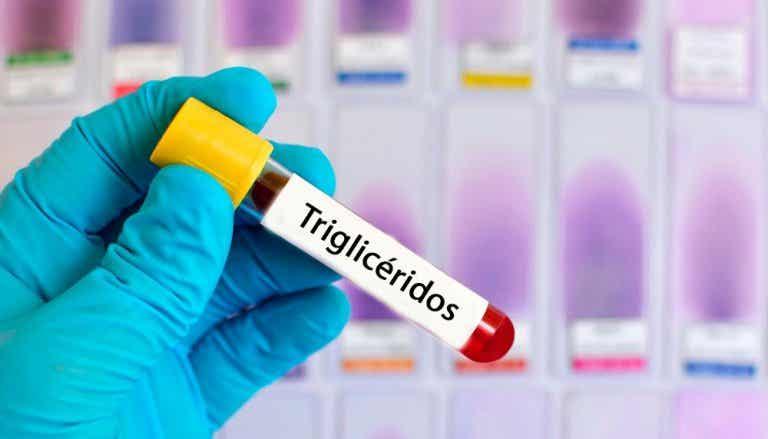 Un programme alimentaire d'une semaine pour réduire son taux de triglycérides
