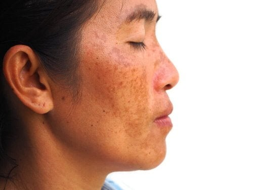 remèdes naturels pour le traitement du mélasma