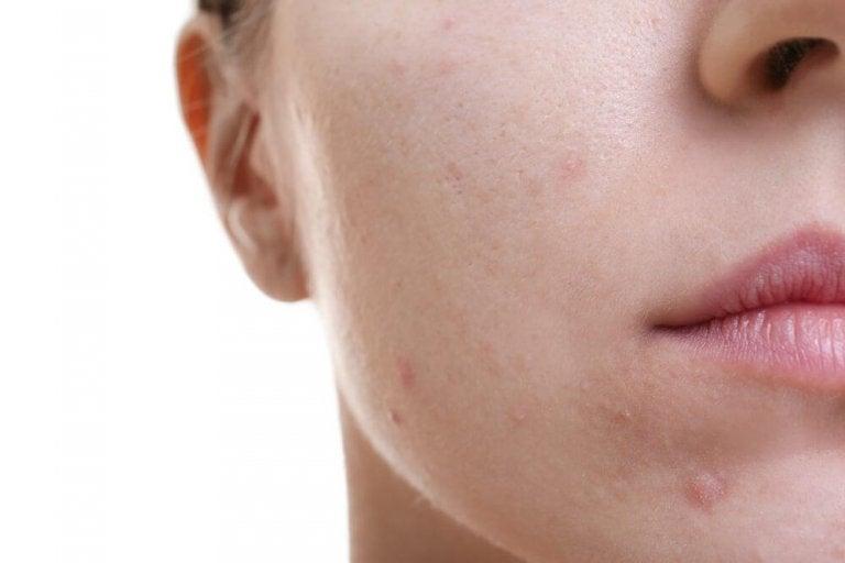 Découvrez cet incroyable traitement pour lutter contre la peau grasse