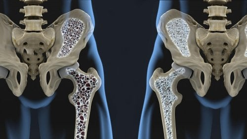 Régime reconstructif des os et des articulations
