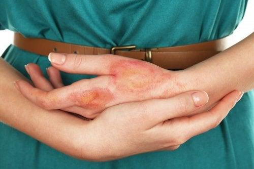 Brûlures aux mains : 7 remèdes naturels