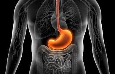 Remèdes naturels pour soulager la gastrite