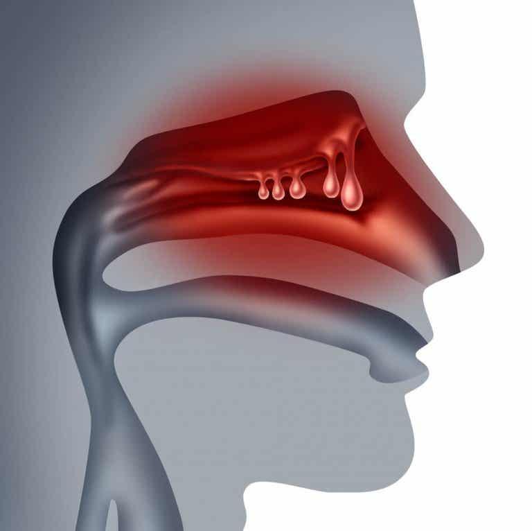 Comment traiter les polypes nasaux grâce à 5 solutions maison
