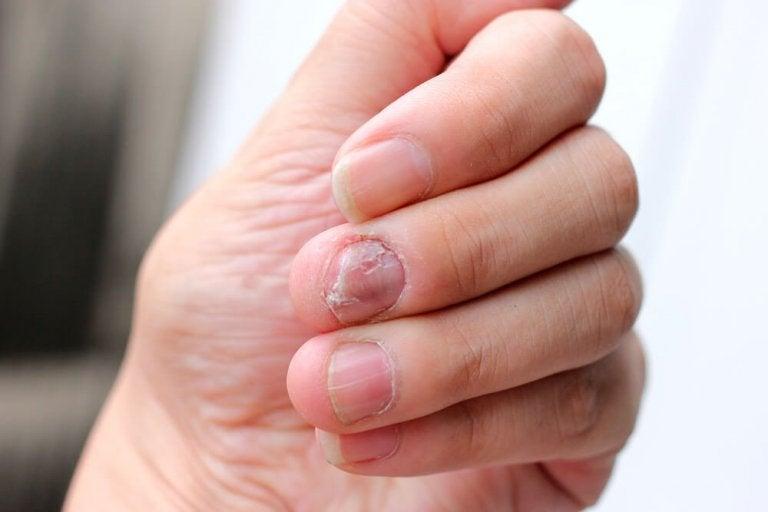 5 remèdes naturels pour lutter contre le psoriasis des ongles