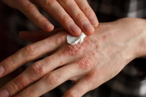 Une main souffrant de psoriasis