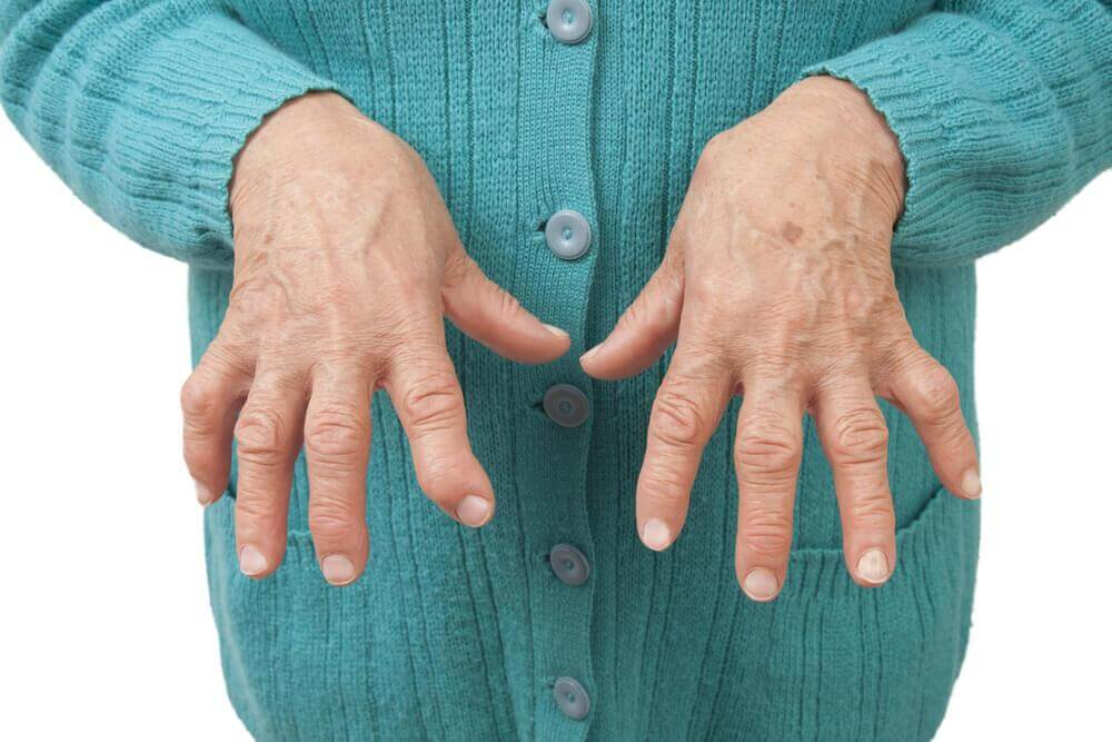 Polyarthrite rhumatoïde : 6 remèdes naturels