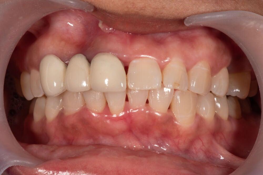 Parodontite et traitement naturel de lhypertension