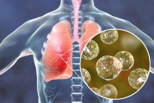5 remèdes naturels efficaces pour contrer les symptômes de la blastomycose