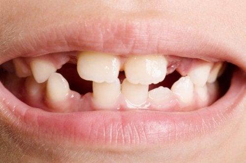 Agénésie dentaire : les différents types et les traitements