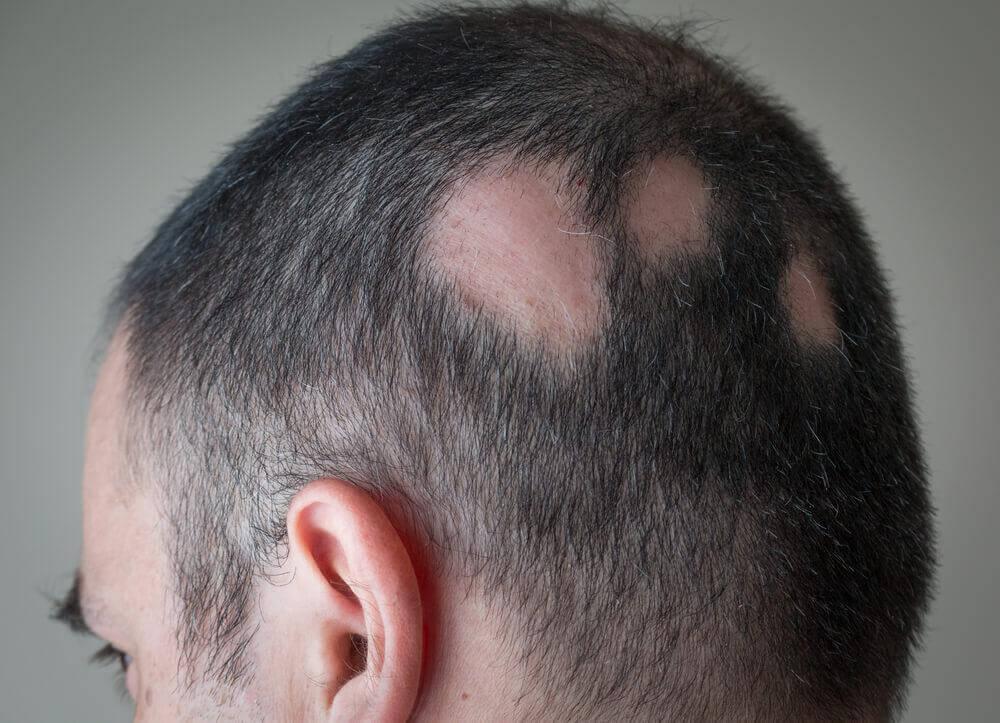 Alopécie : 6 remèdes naturels pour y remédier