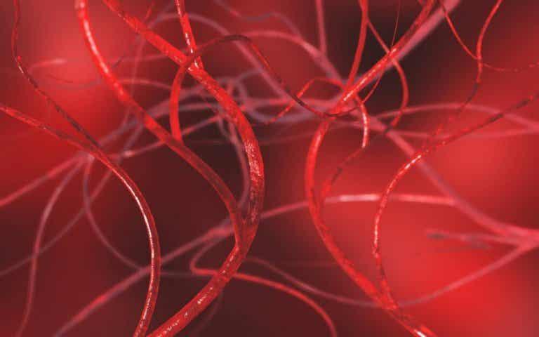 Comment déboucher les artères avec 4 remèdes naturels