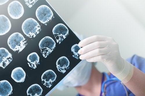 l'influence d'Alzheimer sur le cerveau