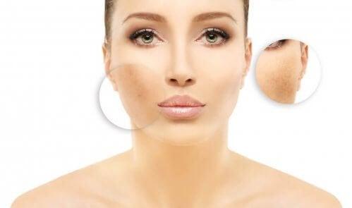 traiter les taches sur le visage