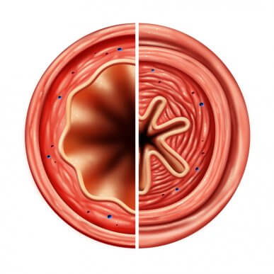 L'asthme : comment fonctionnent les antiasthmatiques ?