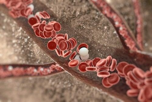 comment déboucher les artères grâce à des remèdes naturels