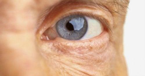 dégénérescence maculaire liée l'âge